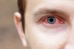 покраснение глаз от марихуаны