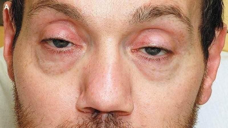 внешний вид наркомана употребляющего опиум